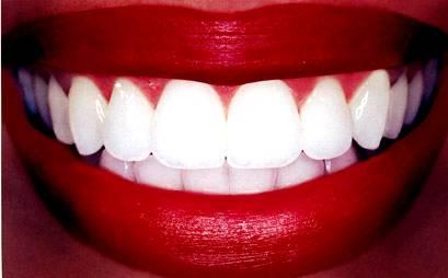 Изображение к которому мы добавим клыки вампира используя Фотошоп.
