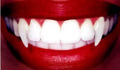 Создаем клыки вампира